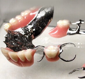 Chrome Dentures